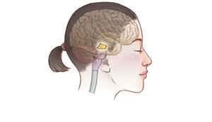 中脳のイメージ
