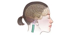 脊髓のイメージ
